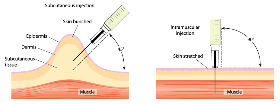 subcutaneous vs intramuscular injections